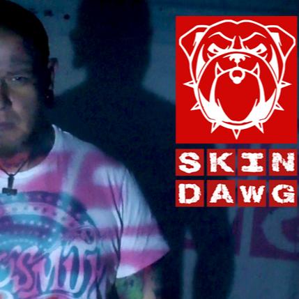 SkinDawg Radio